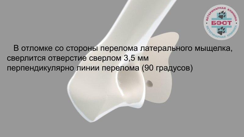 Фиксация неполного внутрисуставного перелома латерального мыщелка плечевой кости компрессирующим винтом и антиротационной спицей: техника
