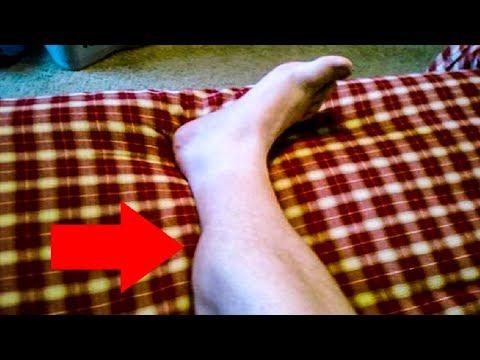 Ночью возникают СУДОРГИ в ногах? Всего 2 компонента помогут ИЗБАВИТСЯ от проблемы.
