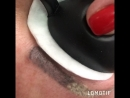 Permanent Profi-лазерное удаление татуажа