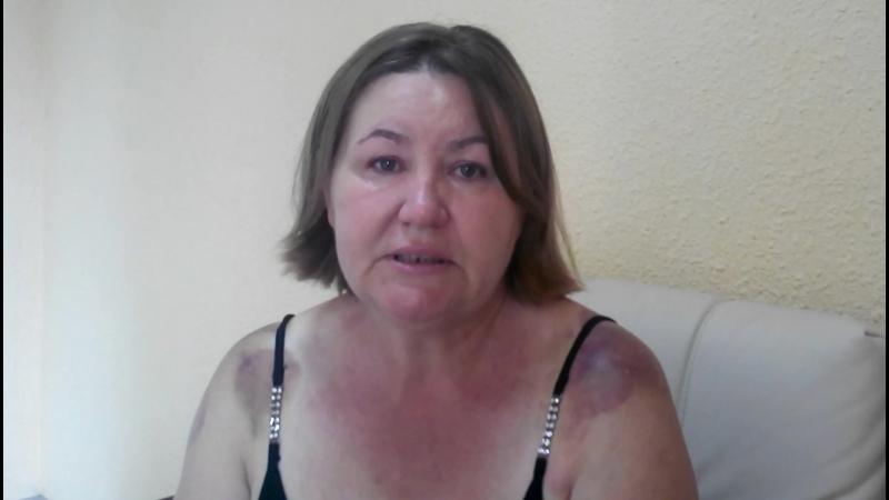Крымский Костоправ - отзыв о его работе пациентки из Уфы....