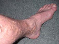 Варикоз вен обычно проявляется в виде выпуклых голубоватых шнуров, проходящих прямо под поверхностью вашей кожи.
