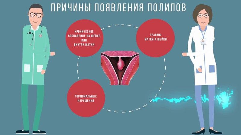 Полипы эндометрия и цервикального канала