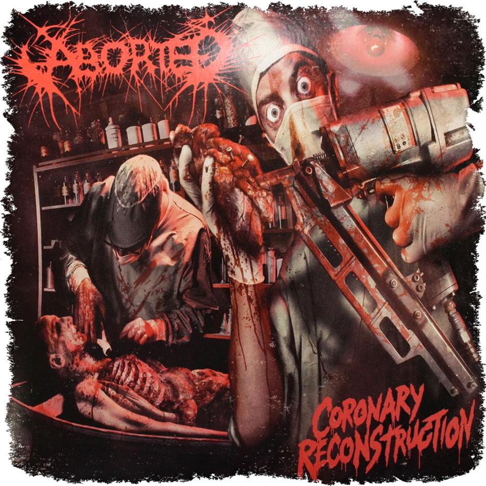 Aborted - Coronary Reconstruction (EP)