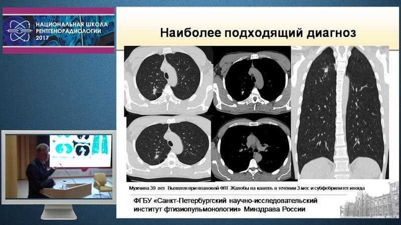 П.В. Гаврилов - Разбор клинических случаев