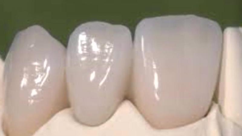 Обзор научной статьи: Консервативное сохранение зуба
