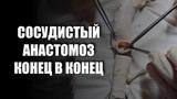 СОСУДИСТЫЙ АНАСТОМОЗ КОНЕЦ В КОНЕЦ (ПАРАШЮТНАЯ ТЕХНИКА) VASCULAR ANASTOMOSIS (PARACHUTE TECHNIQUE)
