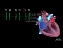 Heart sound s heart murmur s animation