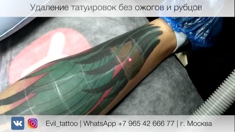 Лазерное удаление татуировки без травм ожогов и рубцов