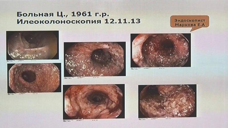 25Щукина ОБ Распространенные ошибки в диагностике и лечении пациентов с ВЗК