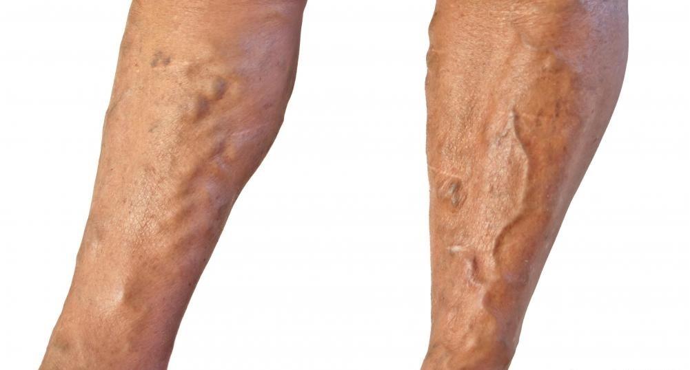 Варикозное расширение вен может улучшиться при лечении антикоагулянтами.