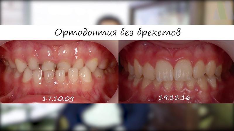 С какими вопросами можно обратиться к ортодонту?