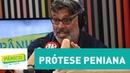 Prótese peniana Alexandre Frota fala sobre procedimento de forma ilustrada