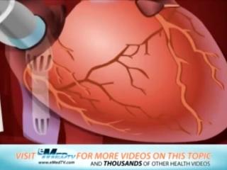 Кардиохирургия   Аорто коронарное шунтирование   Coronary Artery Bypass Graft CA.mp4