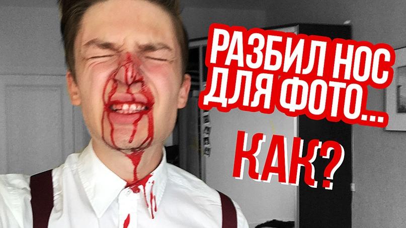 Дима Ермузевич | Минск