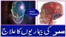 Sar ki Bemariyo ka Gharelu ilaj ¦ Head Diseases Treatment At Home