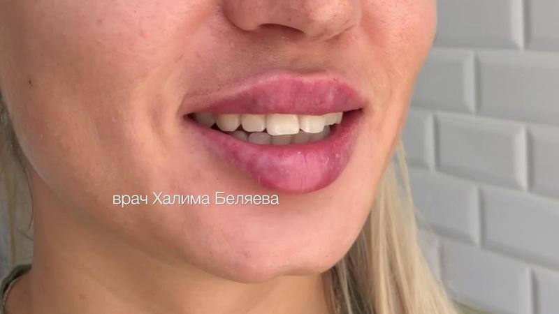 Увеличение губ Сочные губки Врач косметолог Халима Беляева