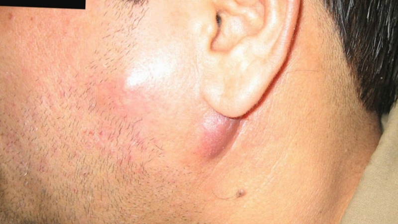 How are swollen lymph nodes linked to HIV