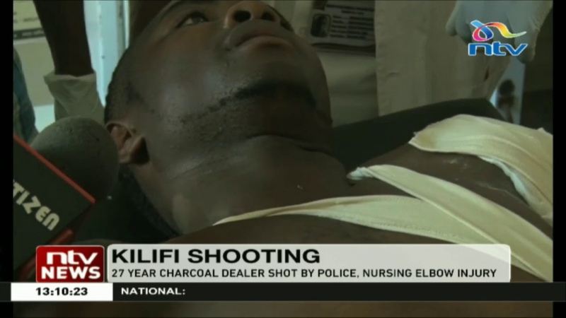 27 year charcoal dealer shot by police, nursing elbow injury