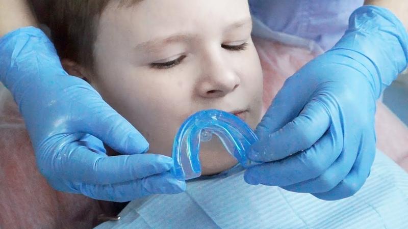 Исправление прикуса ортодонтическим аппаратом (первое посещение )
