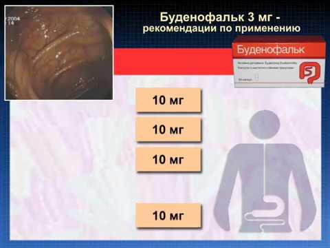 Буденофальк - способ применения при ВЗК (воспалительные заболевания кишечника)©