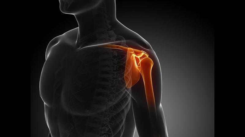 Спортивные травмы плеча: симптомы и реабилитация