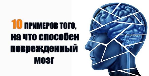Человеческий мозг способен делать удивительные вещи. Простой пример: мы можем воспринимать свет, который отражается от различных объектов вокруг нас. Свет попадает в глаза, и наши зрительные нервы преобразуют его в электрохимические импульсы. Импульсы — э