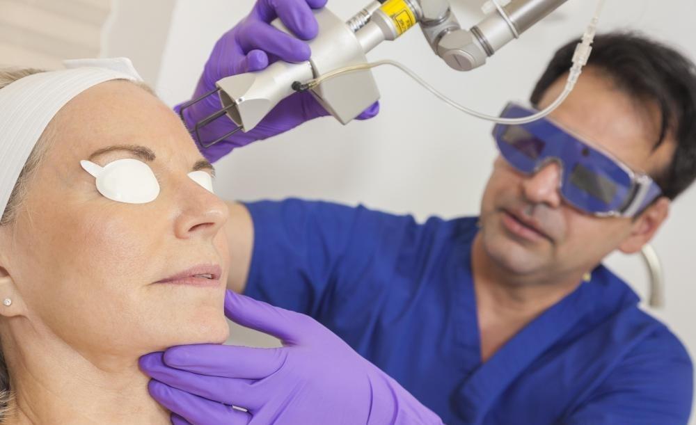 Лазерные эпиляторы часто используются на нежелательных лицевых волосах.