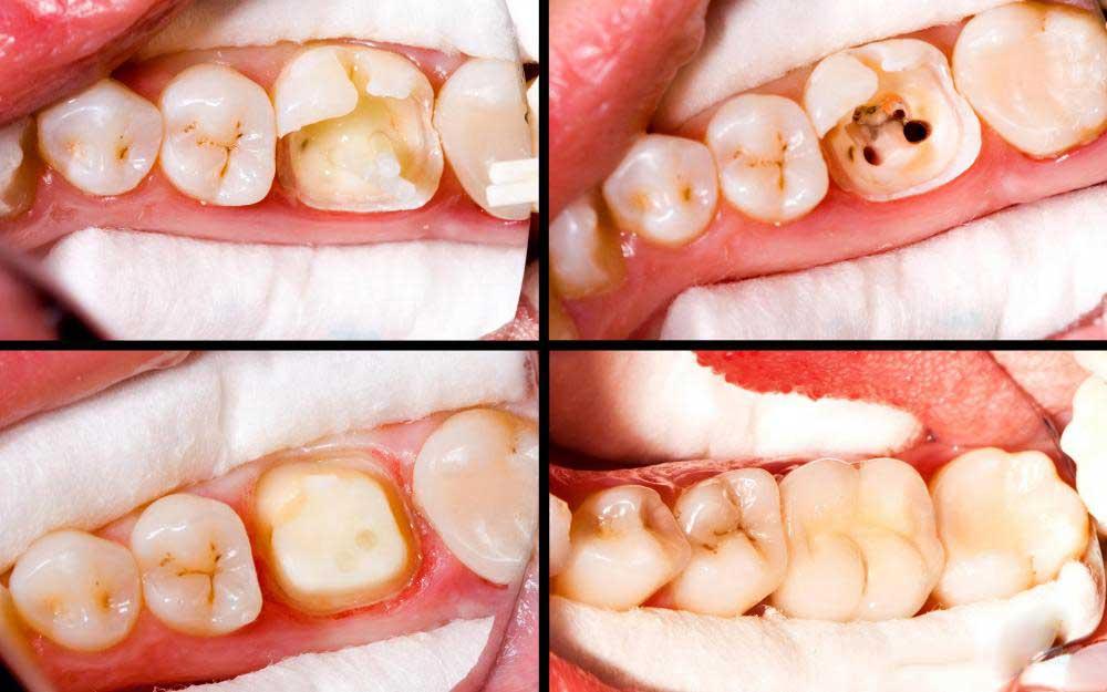 Стеклянные иономеры, которые выделяют фтор, часто используются в качестве пломб для детских зубов