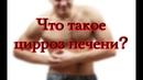 Цирроз печени - симптомы, лечение, стадии, признаки
