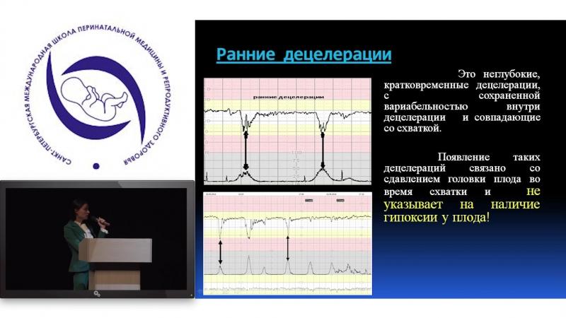 Алпаидзе Кристина Нугзарова. Критерии FIGO в оценке КТГ