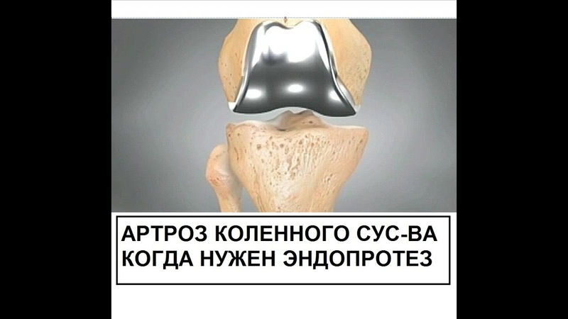 Артроз суставов . Когда нужно эндопротезирование