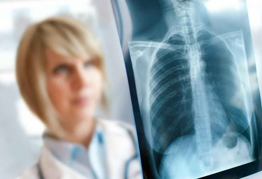 ХОБЛ можно диагностировать с помощью рентгенографии грудной клетки.
