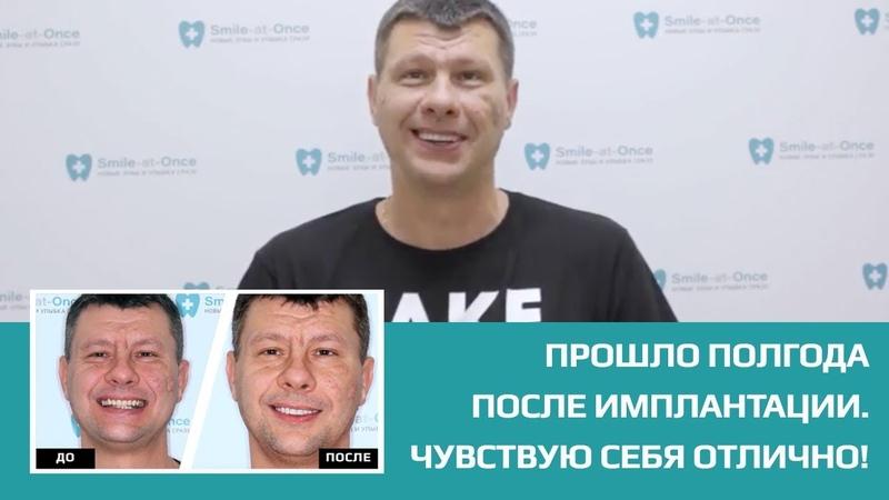 👍 Через полгода после имплантации с немедленной нагрузкой. Отзыв пациента клиники Smile-at-Once.