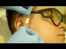 Удаление невуса на лице
