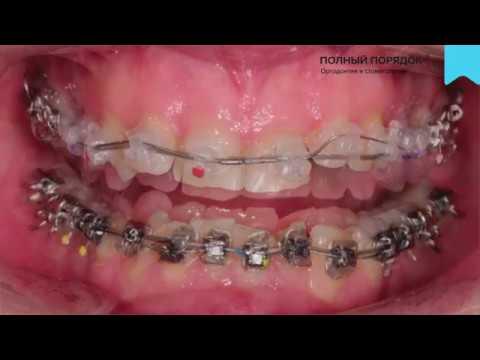 Видео 110. Результаты лечения на комбинированной брекет-системе Damon