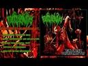 TERATOCARCINOMAS - Torture By Debridement (Full EP Stream-2018)