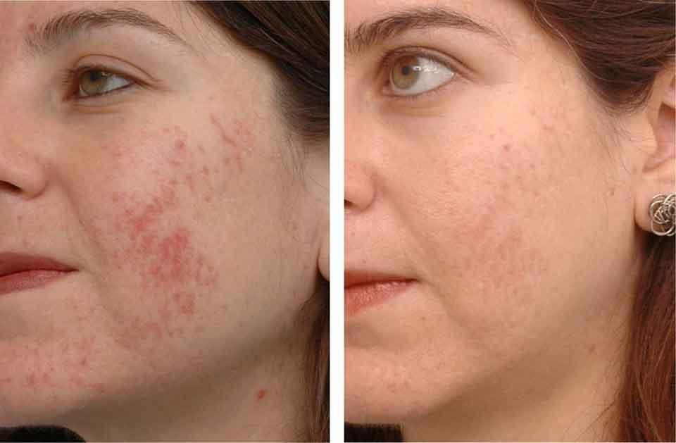 Фотоомоложение до и после