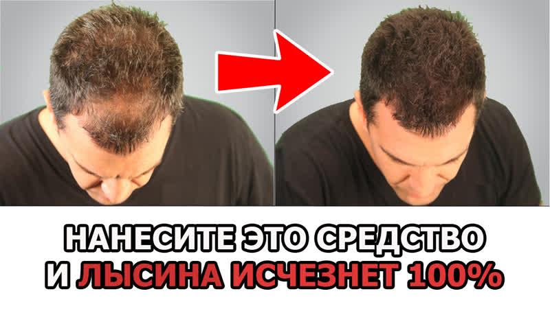 Как сделать волосы густыми и убрать лысину | Как сделать волосы на лысине