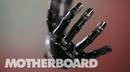 The Mind-Controlled Bionic Arm With a Sense of Touch