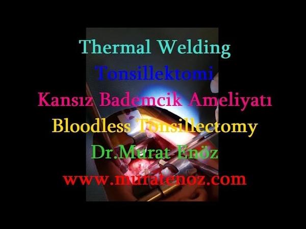 Thermal Welding Yöntemi İle Bademcik Ameliyatı