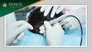 BIOFIBRE Công nghệ cấy tóc sinh học không phẫu thuật