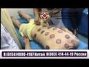 Лечение БАС в Китае.Иглоукалывание. Госпиталь ТКМ
