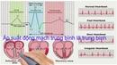 Dải đo và vị trí đo lường áp suất của hệ tim mạch cảm biến và đo lường y sinh kỹ thuật y sinh