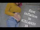 First Belly Inflation in Iceland!