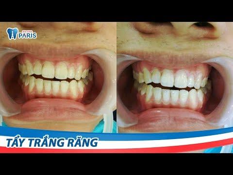 Chỉ 1 giờ Tẩy trắng răng WhiteMax - Hiệu quả tới 5 năm