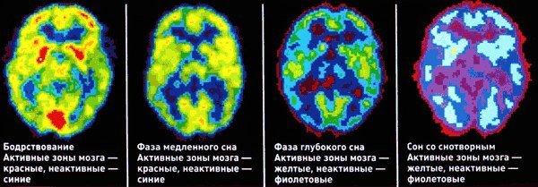 Принцип работы мозга млекопитающих(в том числе человека)