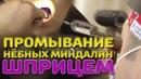 Промывание нёбных миндалин шприцем Лечим правильно с Владимиром Зайцевым