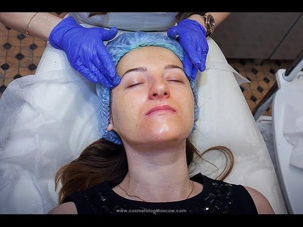 Процедура нанесения желтого ретиноевого пилинга