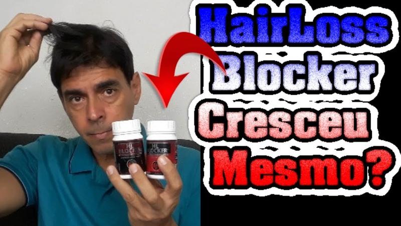 Hairloss Blocker Funciona? Compensa usar? Hair Loss Blocker Funciona Mesmo e ponto Final?