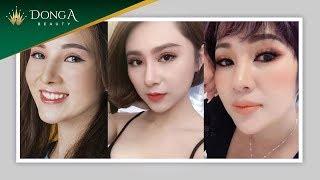 """Top 5 ca Thẩm mỹ mắt """"lột xác"""" ngoạn mục tại Đông Á"""